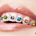 """Mit Braces präsentiert Microsoft eine digitale Zahnspange. Per Bluetooth wird sie mit dem Smartphone gekoppelt. Fortan vibriert bei eingehenden Anrufen und SMS der gesamte Mundraum. Dank integriertem GPS kann der Nutzer die Zahnspange auch zur Navigation nutzen. Die Vibration auf dem jeweiligen Zahn gibt dabei an, in welche Richtung die Route führt. Fotos können mit einer eingebauten 32-Megapixel-Kamera geschossen werden, und die Funktion """"Word of Mouth"""" übersetzt das gesprochene Wort direkt simultan in eine andere Sprache. Dank eines integrierten Mini-Beamers können bei geöffnetem Mund auch Filme auf eine nahe gelegene Wand projiziert werden."""