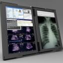 Nicht nur Ärzte können die zwei Bildschirme nebeneinander stellen.