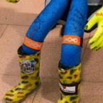 Schwer zu erkennen: Auf seinem rechten Bein hat Fußballweltmeister André Schürrle signiert.