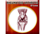 Icon: Rheumatoid Arthritis of Knee