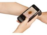 Bild: Mit dem Handyscope wird das iPhone zum Dermatoskop.
